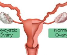 How PCOS Affects Fertility