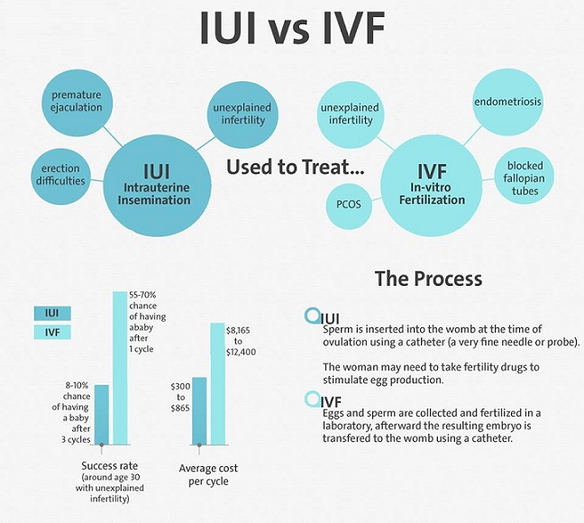 IUI and IVF compared